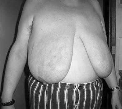 http://3.bp.blogspot.com/_ZtNMTVQhOt4/Syg5JMEAkDI/AAAAAAAABHA/-Ecq_2-Keik/s400/saggy-****-hairy-pits1a.jpg
