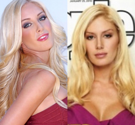 heidi montag before and after 10 surgeries.  Heidi+montag+efore+and+