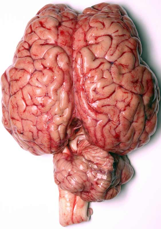 Part 5: Brain Regions and