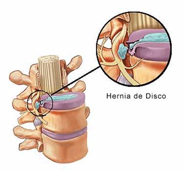 El complejo de los ejercicios a la osteocondrosis del vídeo