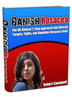 Banish Rosacea