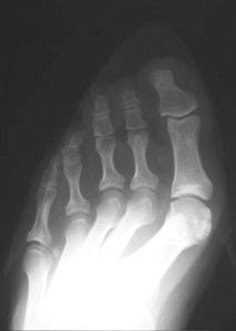 Foot X Rays In Shoe Stores
