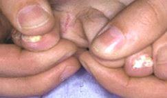 coupure entre les doigts de pied