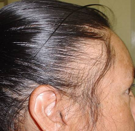 Traction Alopecia, Growing back? | WomenHG