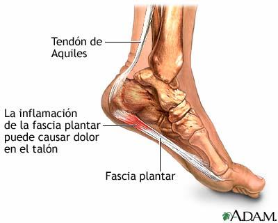 Apuntes para la Salud.: Alteraciones de los pies en los niños.
