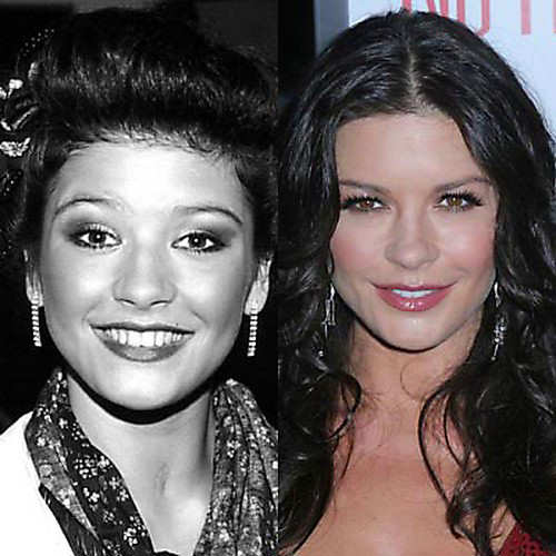 Celebrity face lifts - Plastic Surgery Star