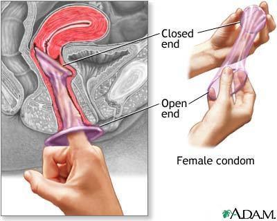 Setelah cincin masuk ke dalam vagina, tangan yang satu memasukkan ...
