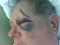 Pop, injured.