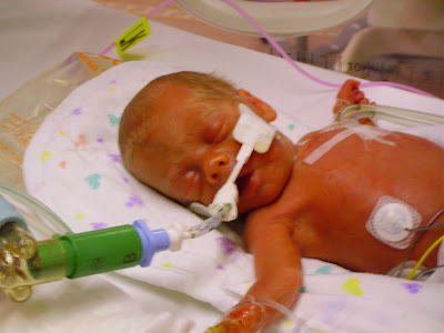 Pin baby born at 26 weeks on pinterest