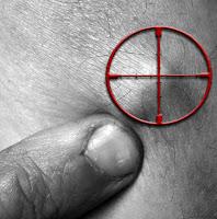 http://3.bp.blogspot.com/_aIHQHdVConQ/Rjda0gVrL0I/AAAAAAAAAA4/Vy0zWuxNdhU/s200/Implant.jpg