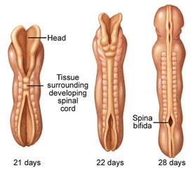 external image spina-bifida-lg-enlg+-+embryo.jpg
