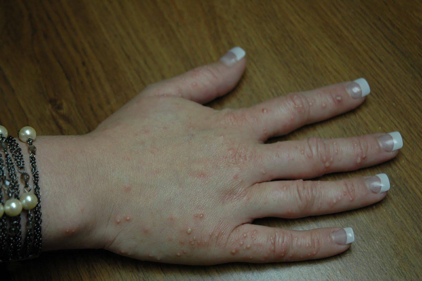 Fire Ant Bite Allergic Reaction Fire Ant Bite Allergic...