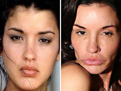 worst plastic surgery