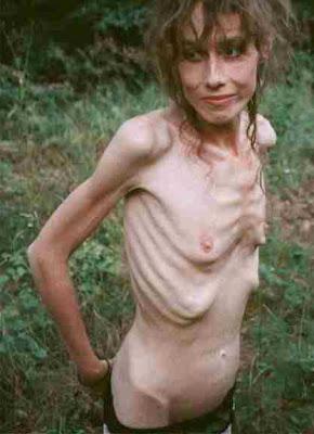 Anoréxica