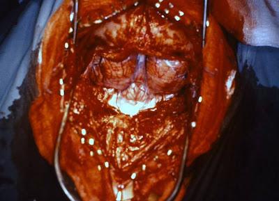 Taenia solium en el estómago