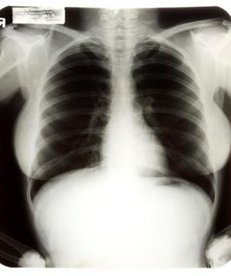 Radiografía Marilyn Monroe