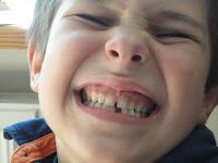 Zajączek Mikuś i ząbek - kiedy wypadają mleczaki.