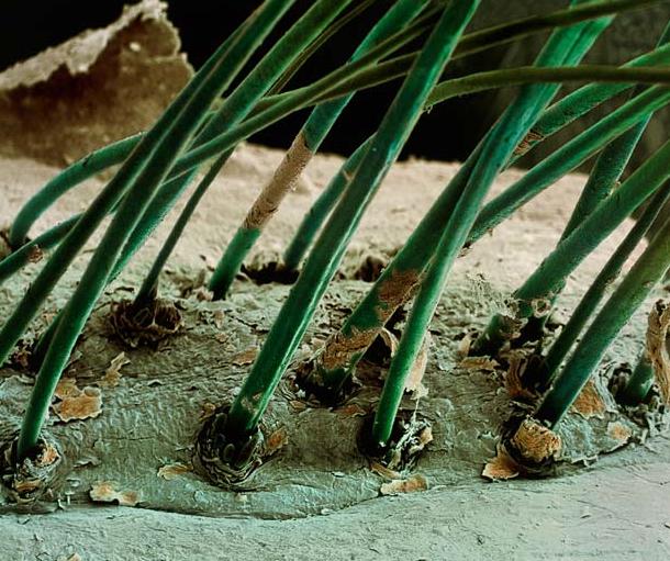 Otra Bacteria en pestaña