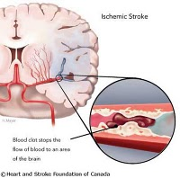 Nursing Care Plan for Stroke in Elderly