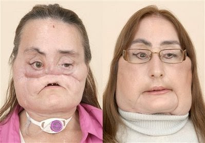 Face Transplant Surgery