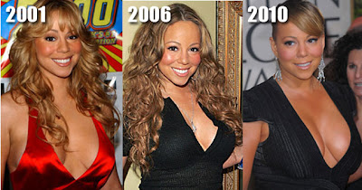 Mariah Carey Size After Implants http://www.plasticcelebritysurgery.com/2010/01/mariah-carey-breast-implants.html