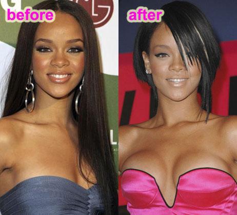 cosmetic augmentation