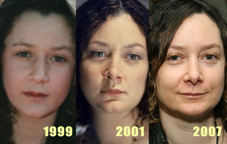 Sara Gilbert Nose Job