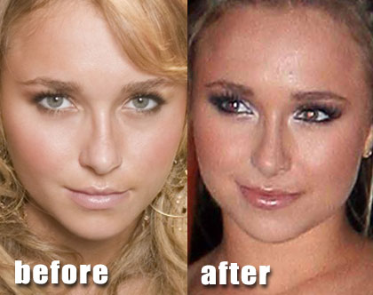 Ashley Tisdale before and after nose job