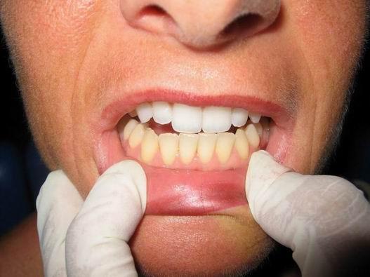 Как сделать зубы белее без вреда для эмали