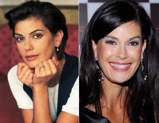 Teri Hatcher before and after pictures (image hosted by plasticsurgerycelebrity.com)