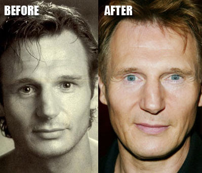fergie plastic surgery before and after. Liam Neeson efore and after