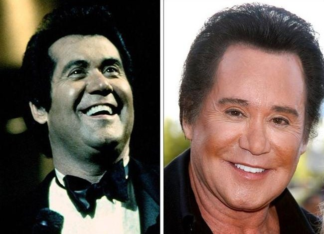 Wayne Newton: had he had plastic surgery? (image hosted by plasticcelebritysurgery.com)