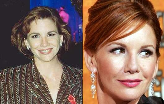anna faris plastic surgery before after. Melissa Gilbert efore after