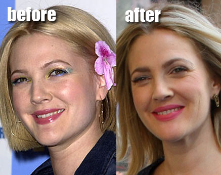 Drew Barrymore before and after plastic surgery and breast reduction?