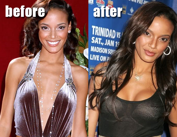 E Breast Implants Before And After Selita Ebanks Breast I...