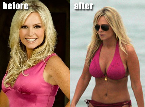 julie benz plastic surgery before and after. Tamra Barney efore and after
