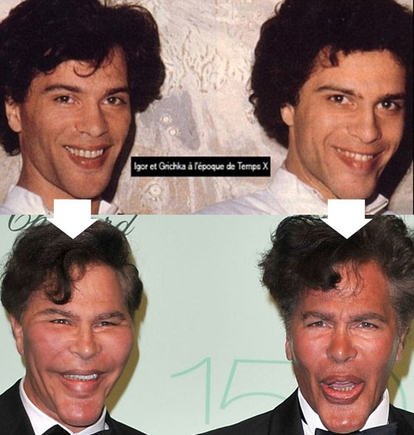 New Celebrity Buzz Bogdanoff Brothers Before After