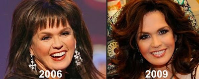 Marie Osmond plastic surgery, face lift, botox...? (image hosted by plasticcelebritysurgery.com)