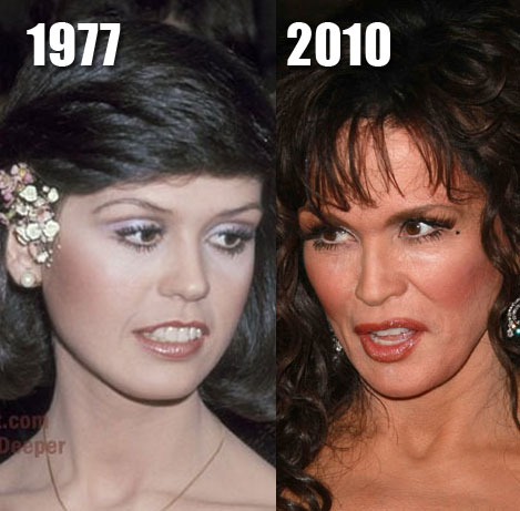 Marie Osmond before and after plastic surgery? (image hosted by plasticcelebritysurgery.com)