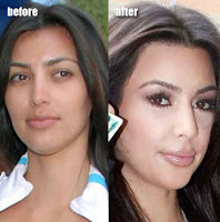Kardashian Lips on Kim Kardashian Before After Lip Injections