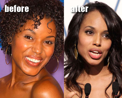 Kerry Washington Plastic Surgery Before