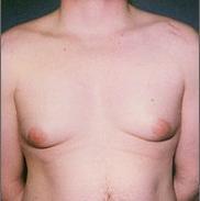 гинекомастия, причини за гинекомастията
