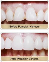 Veneers Are A Little More Different Than Crowns And Bridges Mainly Beause Done For Esthetic Reasons Meaning To Make The