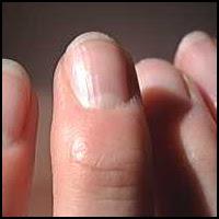 Hand, Hand, Finger, Thumb