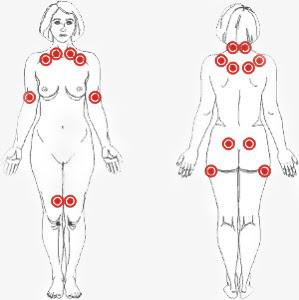 Puntos Hiipersensibles para el diagnóstico de Fibromialgia
