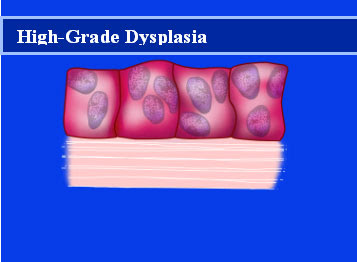 high - grade dysplasia