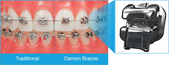 Damon System Braces Vs Traditional Braces