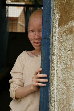 ALBINISM AROUND THE WORLD: Rick Guidotti's Photographs