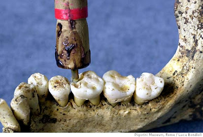 prehistoric man invented dental equipment. this method begins 9000 years ago.
