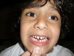 Toothless Adam (March 2008)